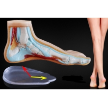 Подпяточники для коррекции Х- и О-образного искривления ног